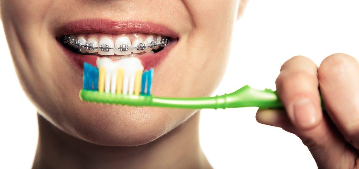 limpieza-ortodoncia