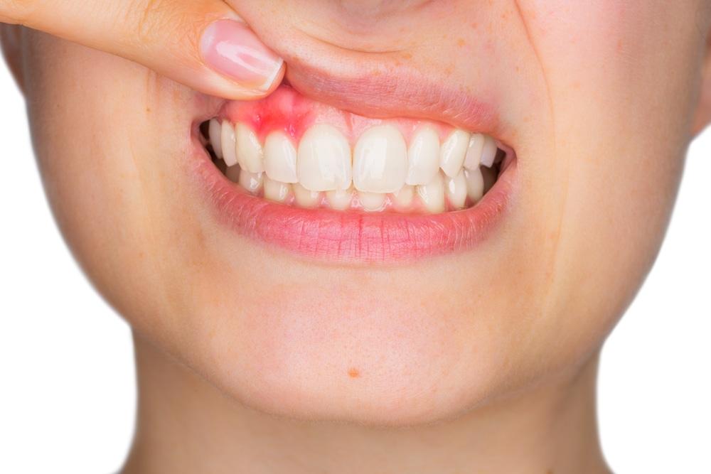 Conoce un poco más sobre la enfermedad periodontal