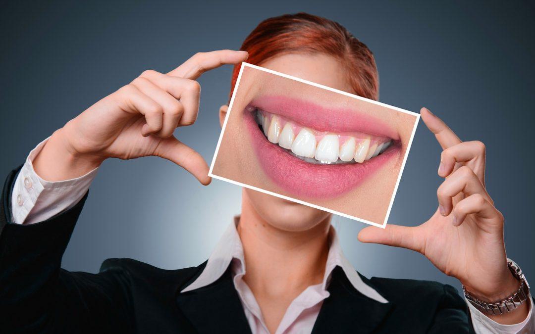 Prótesis dentales, ¿las conoces?