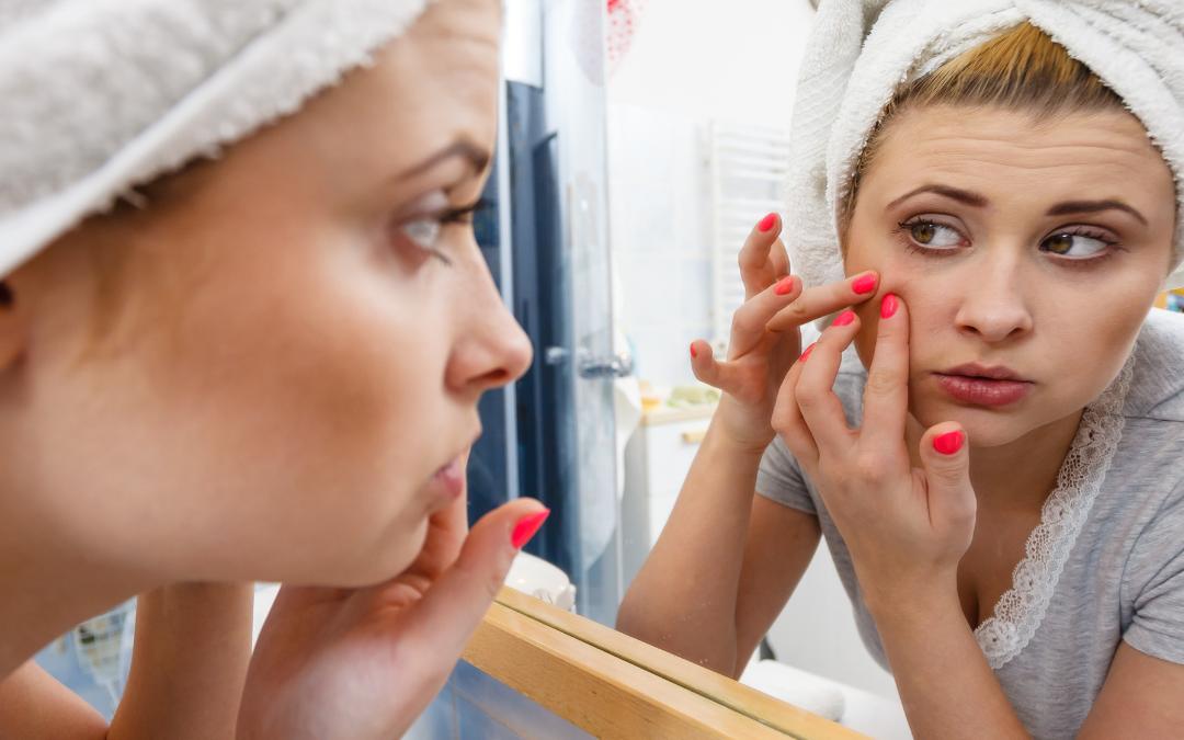 Reducir el acné es más fácil de lo que esperas