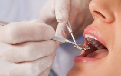 Los riesgos de no acudir al dentista con cierta periodicidad